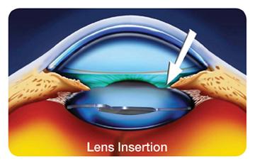 16_Lens_Insertion